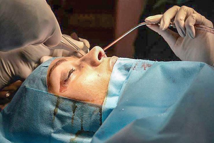 افزایش آمار جراحیهای زیبایی بینی همزمان با شیوع کرونا/ میانگین هزینه جراحی رینوپلاستی